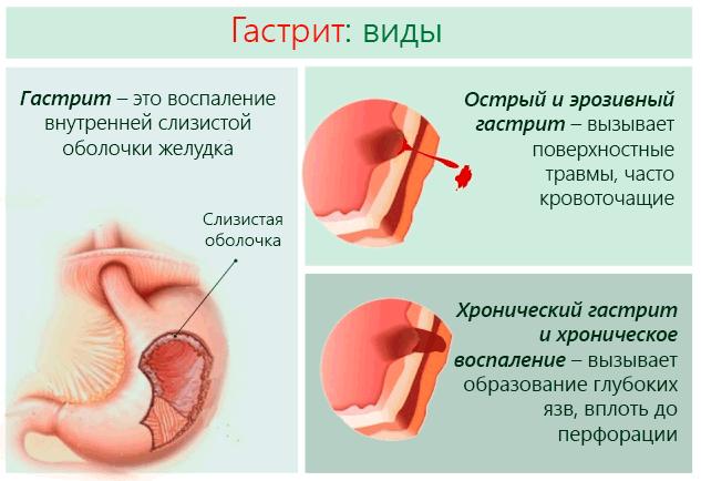 Рефлюкс - гастрит: симптомы, причины и лечение