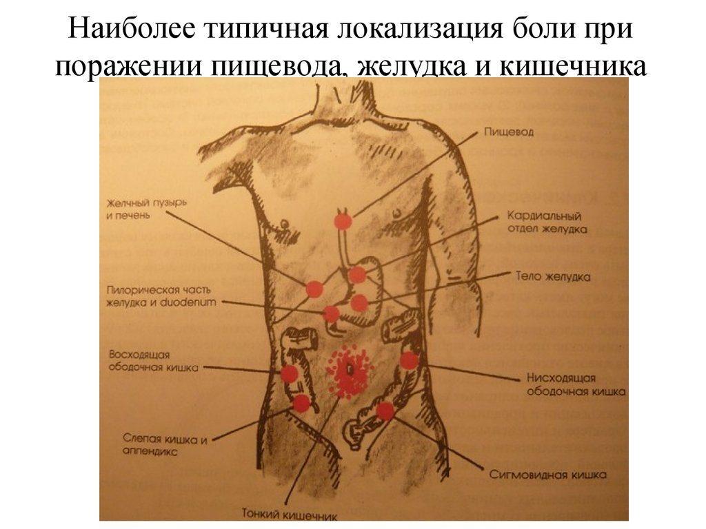 Боли при гастрите: симптомы, признаки, как снять боль