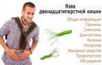 Эффективные способы лечении язвы двенадцатиперстной кишки народными средствами