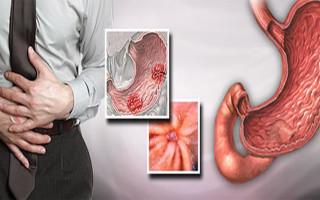 Симптомы и лечение при обострении язвы желудка