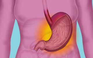 Этиология, симптоматика и лечение язвенной болезни желудка