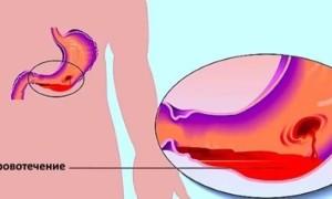 Язвенное кровотечение: причины, диагностика, лечение и диета