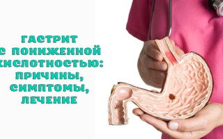 Как выявить и лечить гастрит с пониженной кислотностью