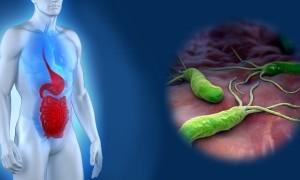 Язва 12 перстной кишки: лечение препаратами