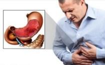 Как болит язва желудка: клиническая картина заболевания и купирование боли