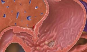 Симптомы и лечение поверхностного антрального гастрита