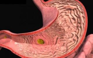 Лечение и диета при эрозивном гастрите