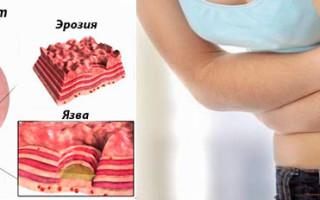 Хронический эрозивный гастрит