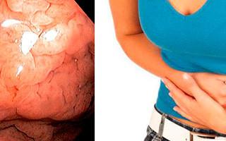 Что это такое, и как лечить атрофический гиперпластический гастрит?