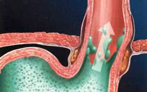 Эффективные методы лечения рефлюкс гастрита