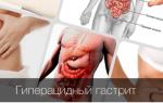 Что такое гиперацидный гастрит и как правильно лечится?