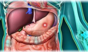 Как лечится острая язва желудка