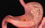 Что такое смешанный гастрит и чем лечить заболевание желудка