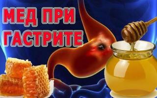 Применение и польза меда при гастрите