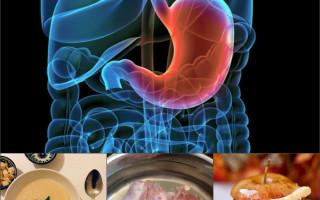Рацион питания при язве желудка в период обострения