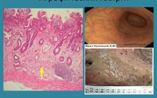 Причины и лечение хронического атрофического гастрита