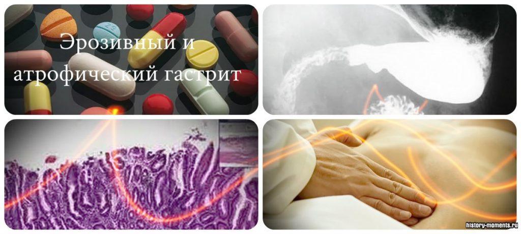лечение атрофического гастрита желудка