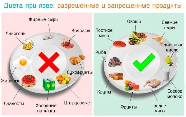 что кушать при диете для желудка