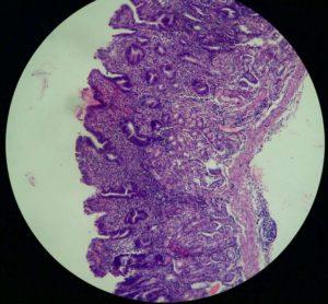 атрофический гастрит симптомы и лечение