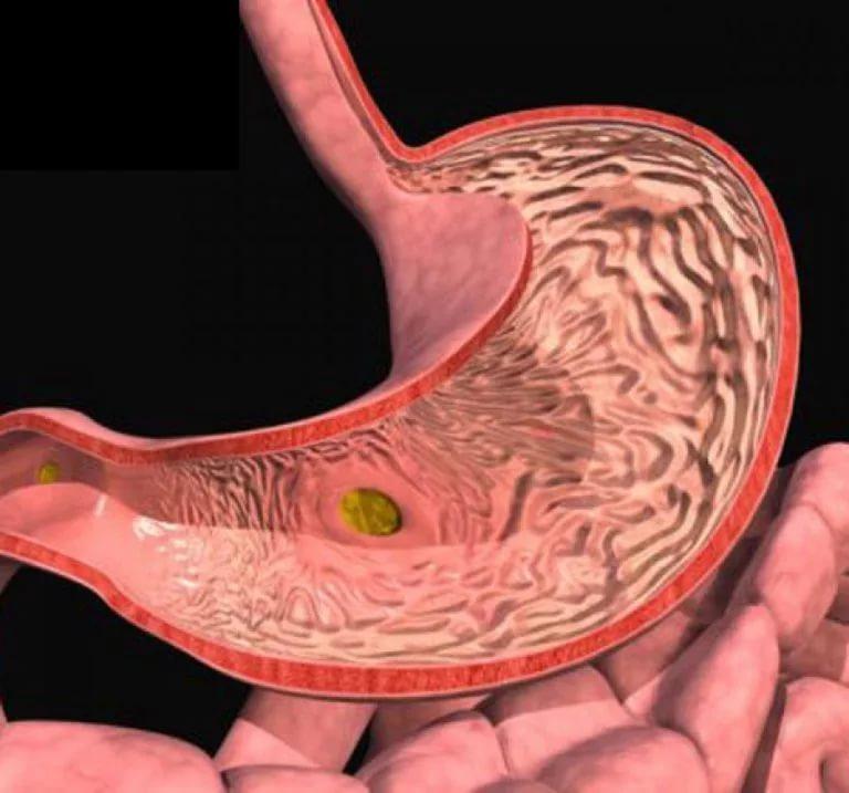 эрозивный гастрит лечение и диета