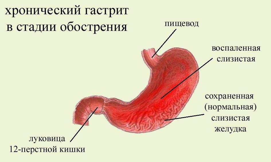 хронический гастрит лечение