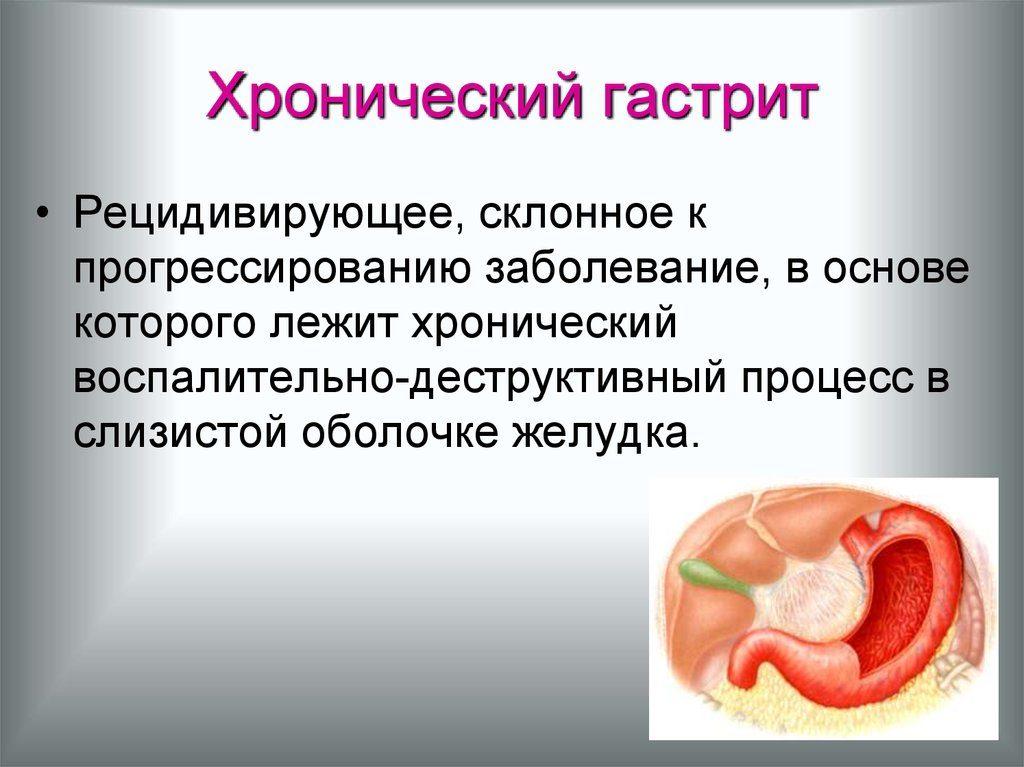 хронический гастрит симптомы и лечение у взрослых