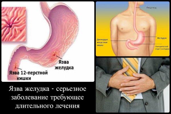 язва 12 перстной кишки симптомы и лечение народными средствами