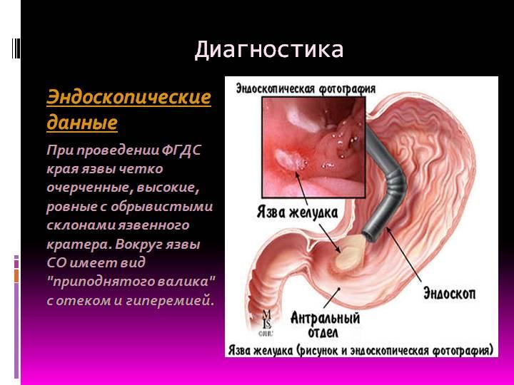 прободная язва симптомы