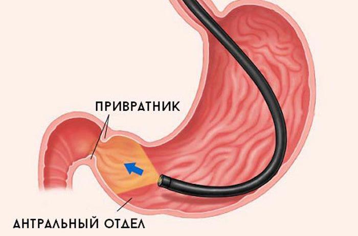 поверхностный гастрит антрального отдела желудка