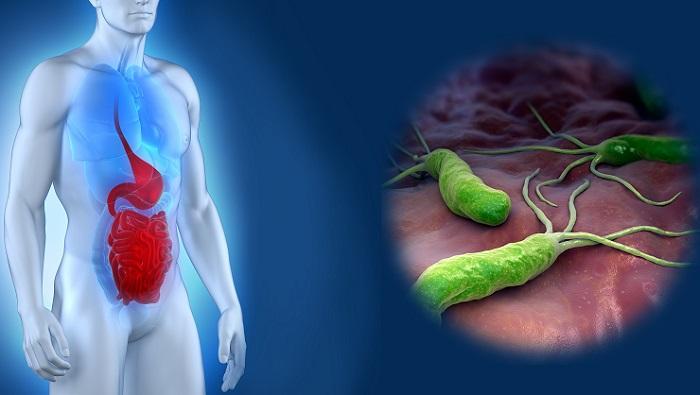 язва 12 перстной кишки лечение препараты