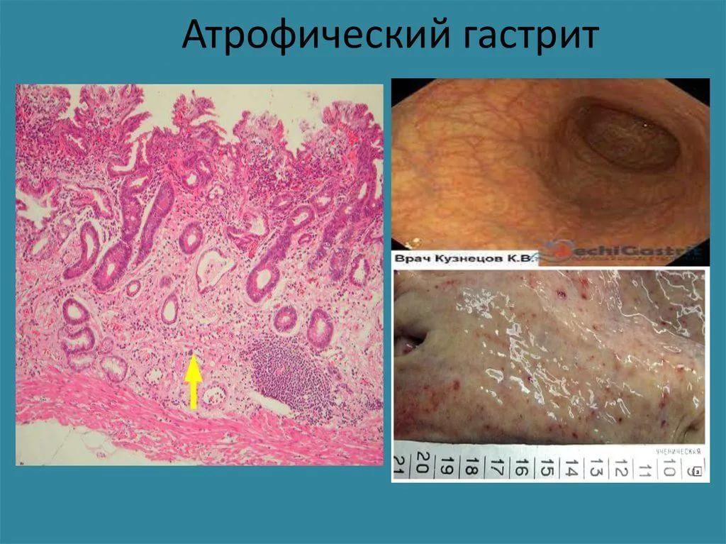 хронический атрофический гастрит