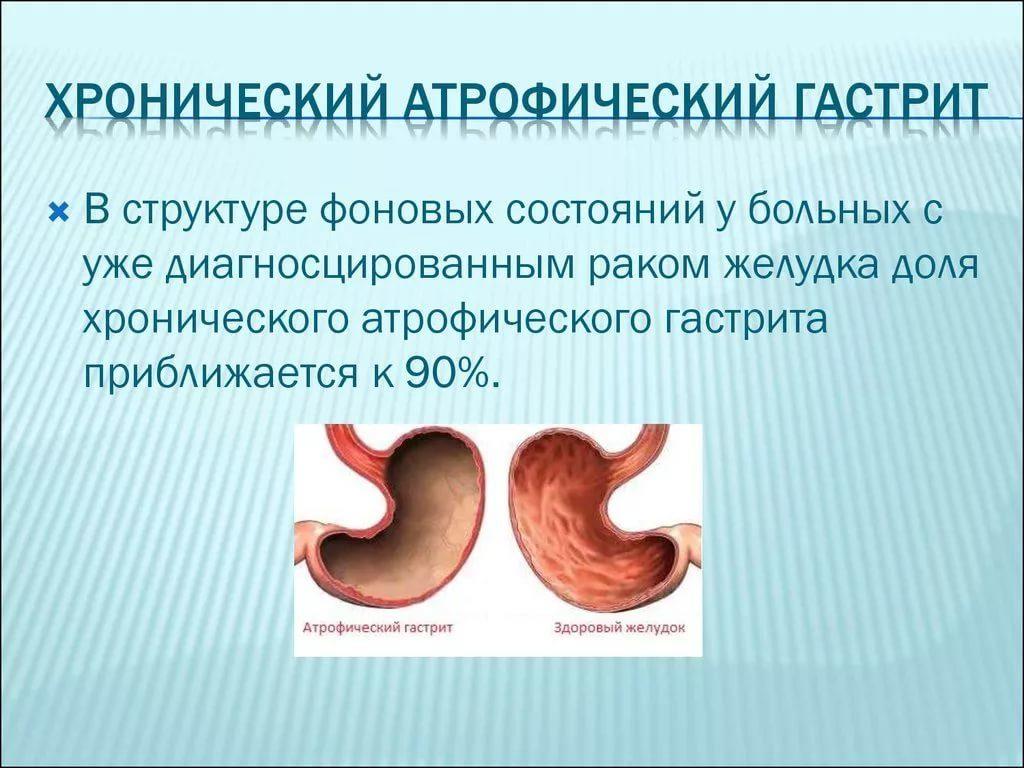 хронический атрофический антральный гастрит