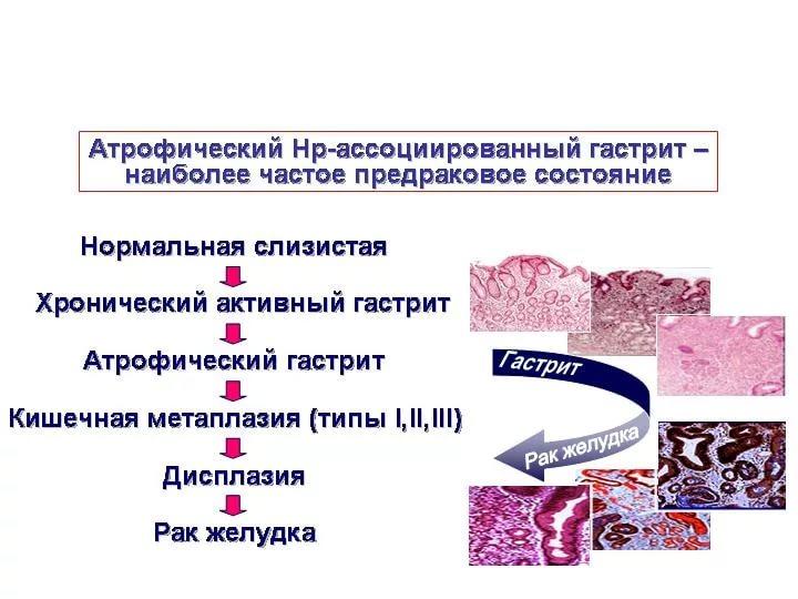 лечение хронического атрофического гастрита