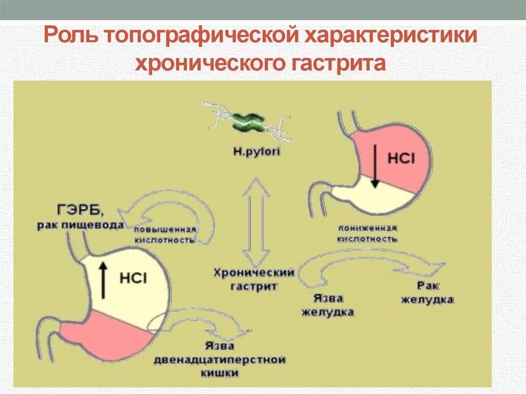 как определить гастрит с повышенной или пониженной кислотностью