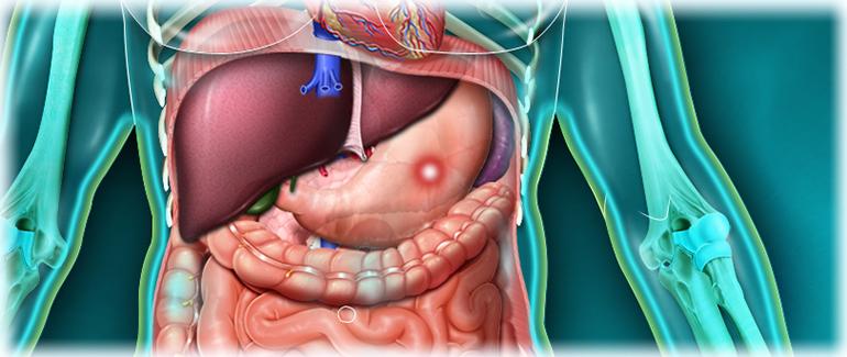 острая язва желудка