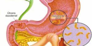 катаральный гастрит лечение