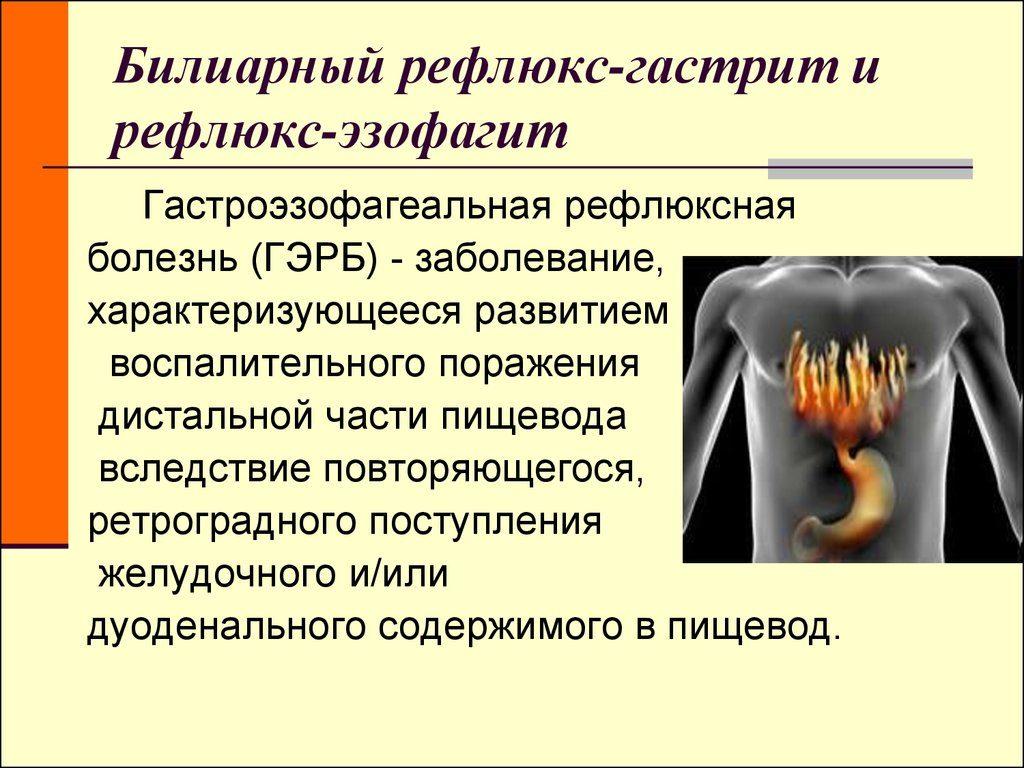 желчный рефлюкс гастрит