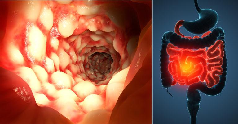 язва толстого кишечника симптомы