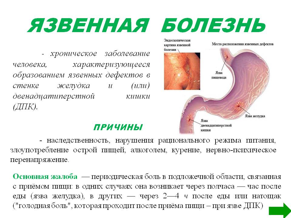 Симптомы Язвы Двенадцатиперстной Диета.