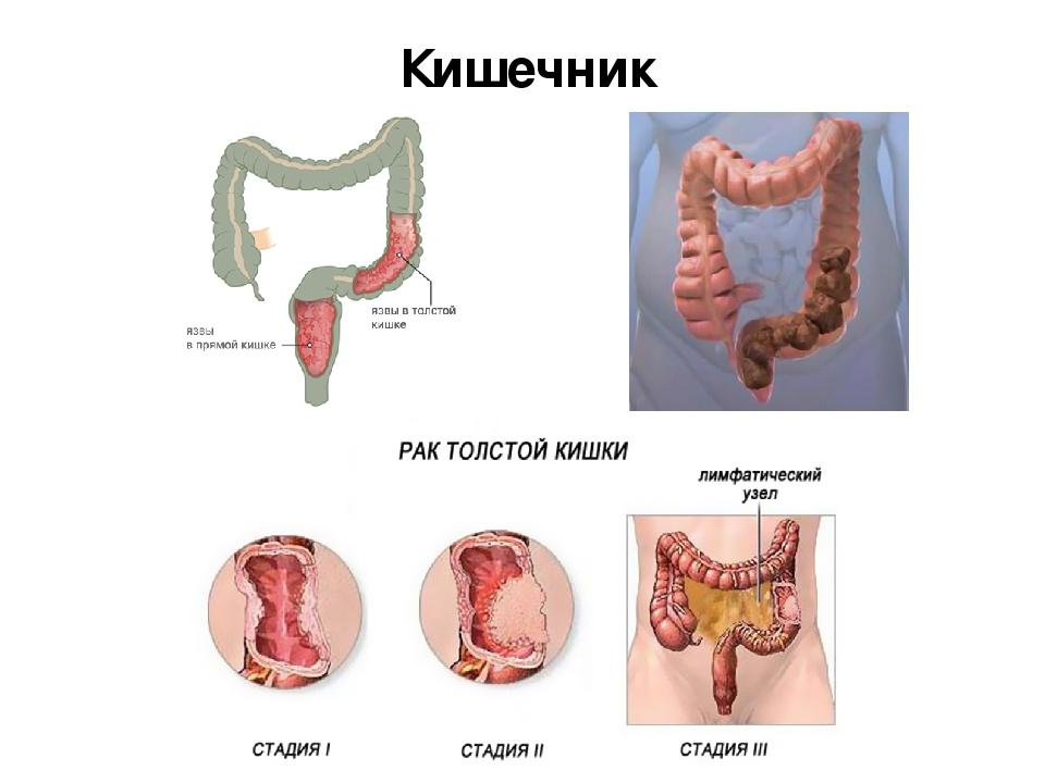 язва толстой кишки симптомы лечение