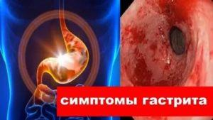 гипоацидный гастрит симптомы