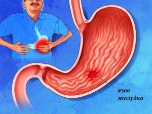 обострение язвы желудка симптомы