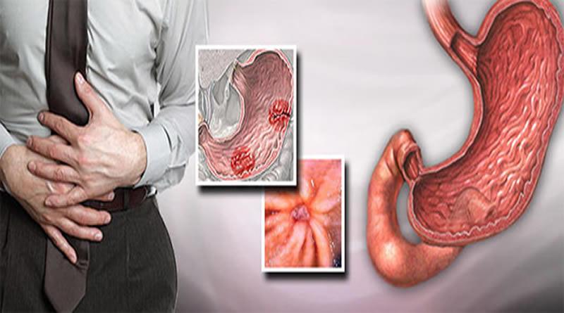 обострение язвы желудка симптомы и лечение